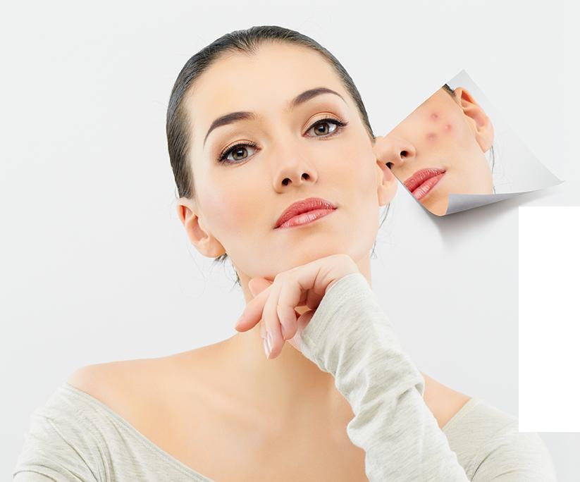 Anti Acne Salon Spa Milada Ile Des Soeurs