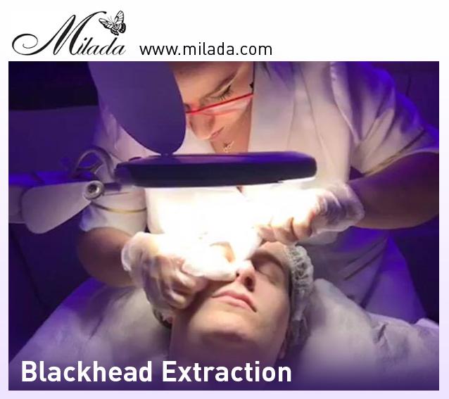 Deep Facial Cleansing Blackhead Removal, Facial Spa Milada Montreal